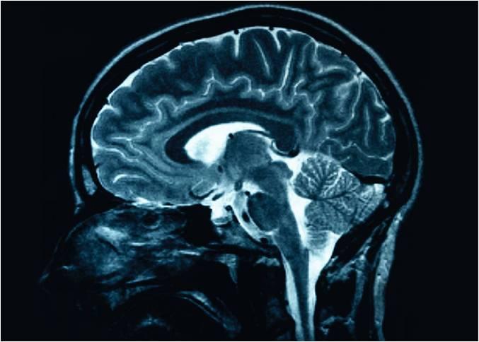 Concussion:  Brain Injury